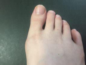 外反母趾のインソール着用について