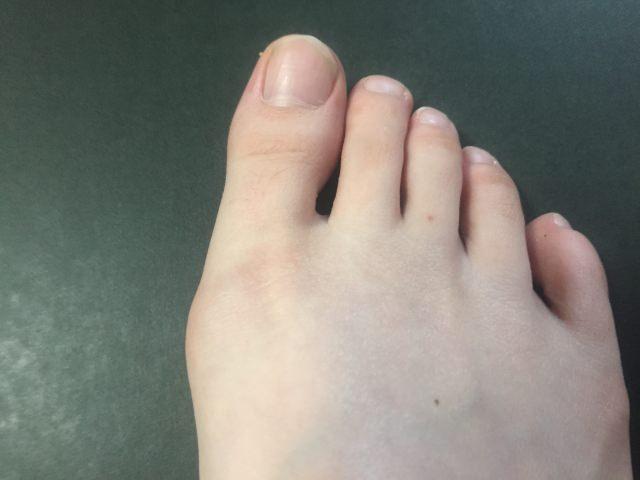 インソールによる外反母趾の対策は不可能!?