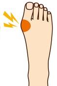 外反母趾の痛みの原因とは?痛みの原因4選