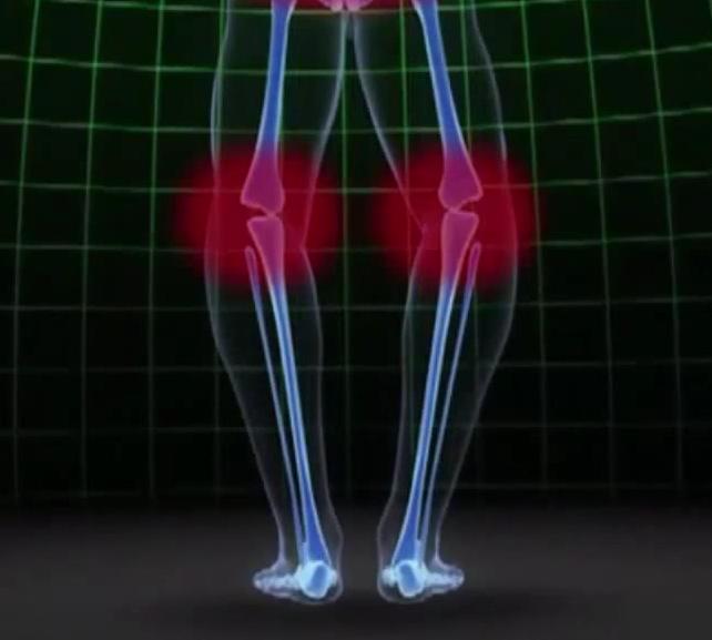 ひざ・腰の痛み