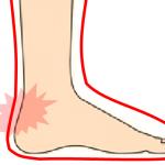 靴擦れでかかとが痛い方におすすめの靴5選