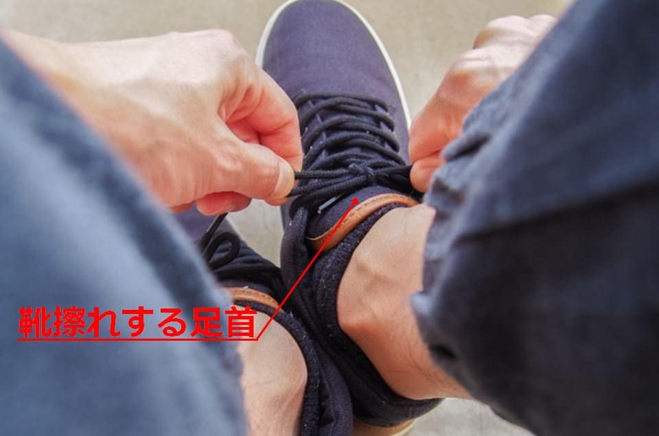 足首の靴擦れに!おすすめの対策4選とその原因について