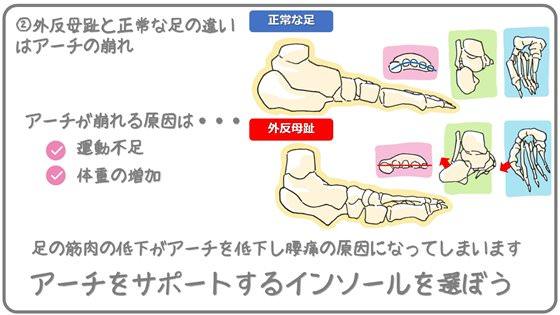 アーチの崩れは外反母趾や腰痛に