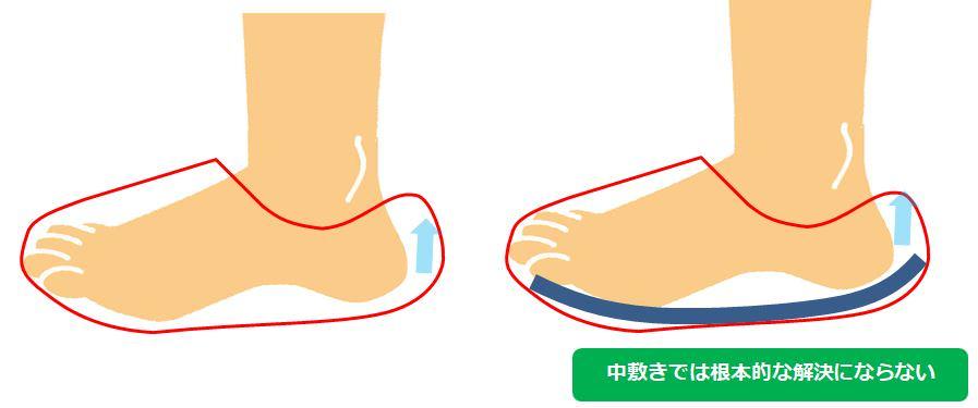 靴 脱げる 中敷き